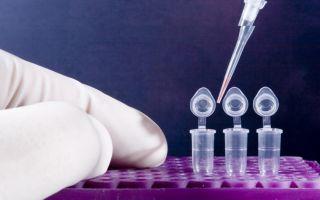 ПЦР на ВИЧ — как подготовиться и сдавать анализ, достоверность