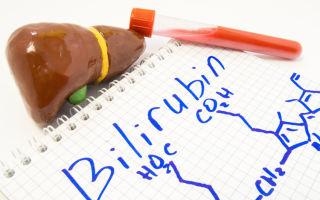 Сдача анализа крови на билирубин. Норма и расшифровка результатов