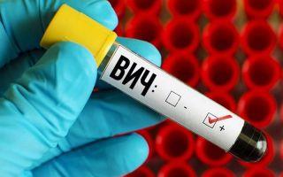 Что такое ложноположительный анализ на ВИЧ? Диагностика и причины результата