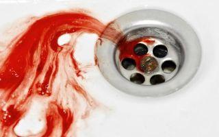 Кровь в слюне — причины и лечение