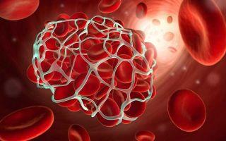 Для чего необходим анализ крови на гемостаз и так ли это важно?