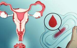 Сколько идет кровь после выскабливания — норма и патология