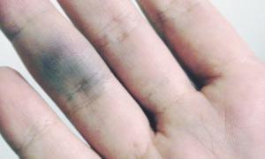 Лопаются сосуды на пальцах рук — причины и лечение
