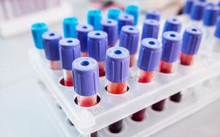 Зачем делают биохимический анализ крови и как его расшифровать?