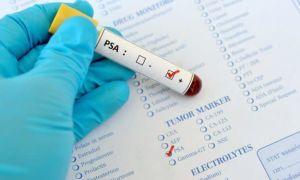Общий белок в крови понижен — что это значит, причины и лечение