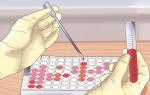 Иммунохимический анализ — подготовка, проведение и расшифровка