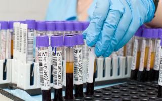 Что означает онкомаркер СА 15-3? Показания, проведение и расшифровка анализов