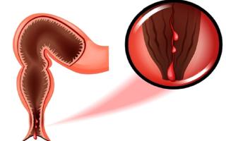 Кровь из попы (ануса) — причины и лечение