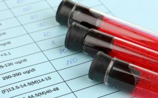 Что означает повышенное СОЭ в крови у женщин и как вернуть показатель анализа в норму?