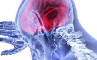 Инсульт левой стороны — последствия, лечение и реабилитация