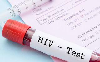 ВИЧ и гепатит: как правильно сдается анализ крови, натощак или нет? Нюансы процедуры