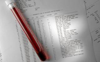 Все об анализе крови на стерильность. Как сдать тест в Инвитро и других лабораториях?