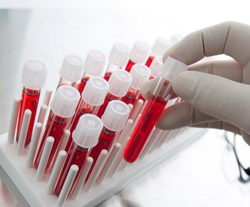 Эозинофиллы в анализе крови