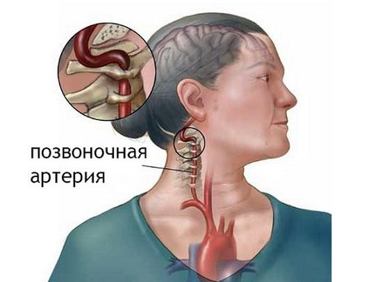 Симптомы сужение сосудов шеи