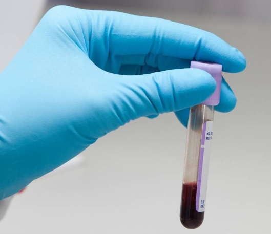Анализ крови содержание белка