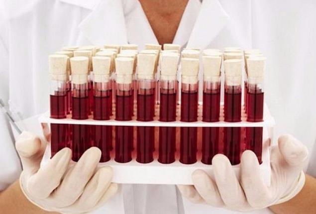 Что показывает базофилы в анализе крови