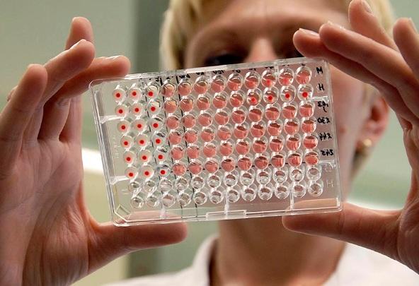 Расшифровка анализа крови по квику