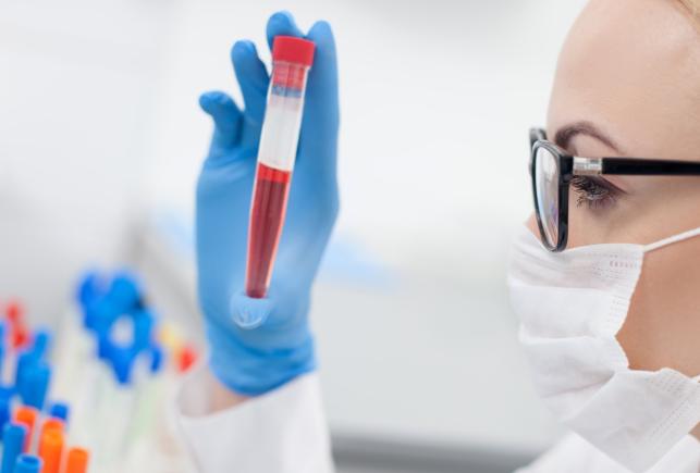 Определить вич при общем анализе крови thumbnail