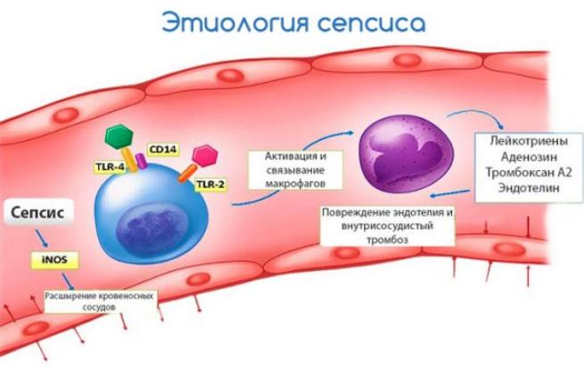 Анализ крови больного сепсисом