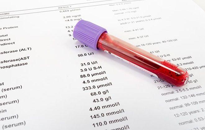 Норма и повышенный билирубин в крови: показатели по возрасту у мужчин в таблице