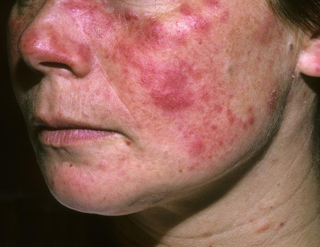 Мраморная кожа ребенку 3 года